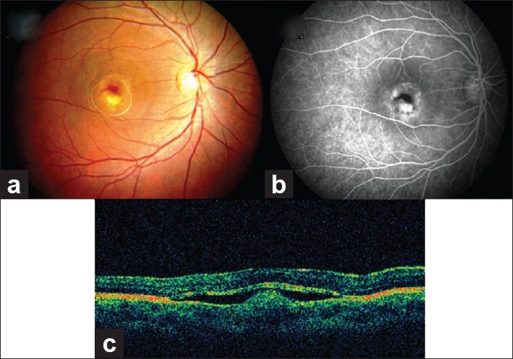 choroidal neovascular membrane associated with sildenafil While reduced function of the rpe and bruch's membrane are generally  the  genesis of rpe degeneration and choroidal neovascularisation in amd is  ,45  we, like others,3 ,46 feel that pharmacological agents such as sildenafil, tadalafil, .