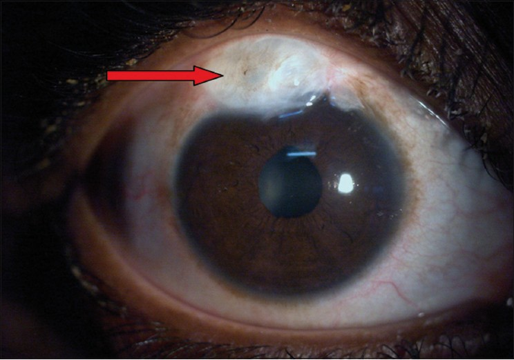 steroid eye drops for viral conjunctivitis