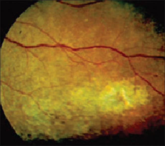 Punctate epithelial keratitis